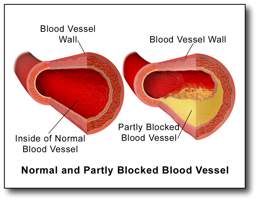 Understanding Cholesterol and Low Carb Diet Blood Vessel Plaque