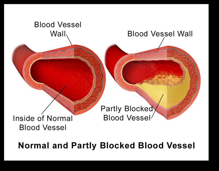 Understanding Cholesterol and Low Carb Diet Blood Vessel Plaque