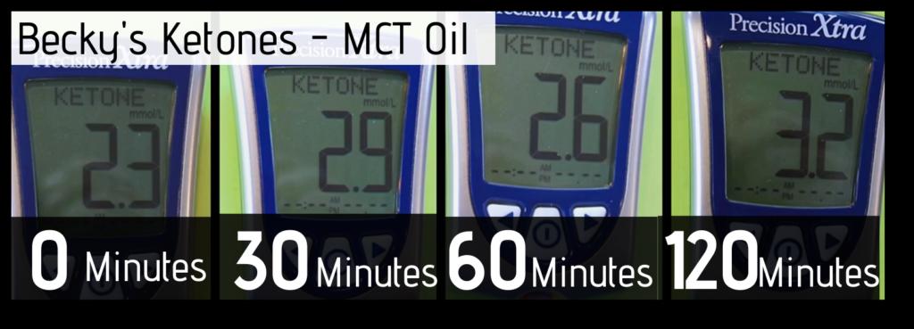 MCT Oil-B-ketones